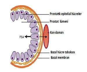 prostat-spesifik-antijen-bitkisel-tedavisi